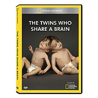 Twins Who Share a Brain DVD-R