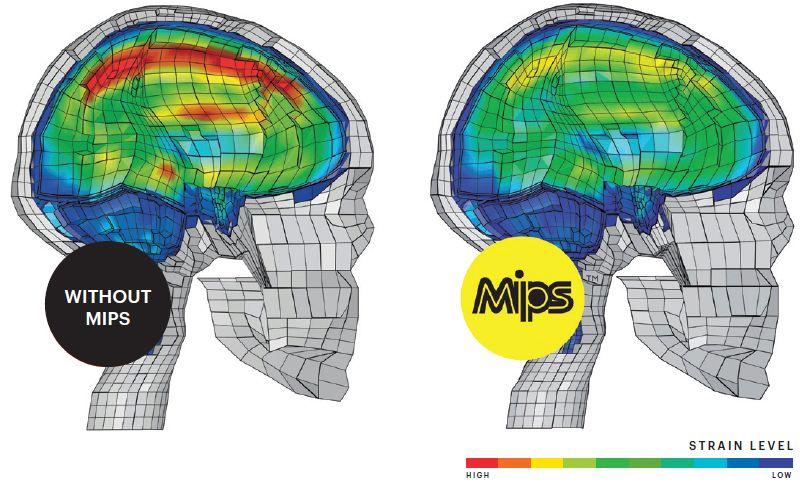 MIPS strain levels