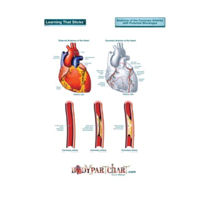 Artery Blockages  – Labeled