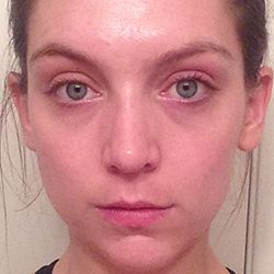 Proactiv+ Results: Alexandra W After