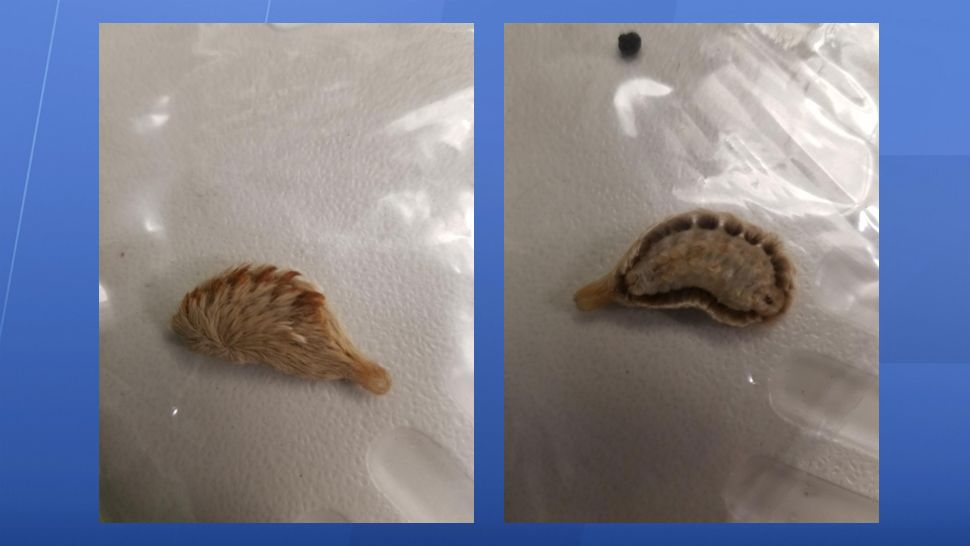 Logan's mother, Andrea Pergola, provided these images of the southern flannel moth that Logan brushed against with his arm. That touch alone was enough to send Logan to the ER.