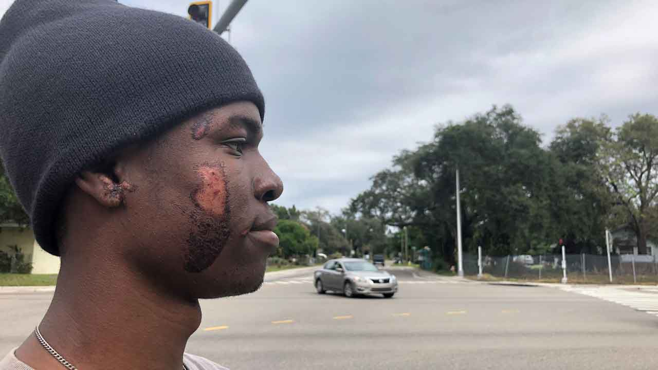Exclusive: Palmetto Hit-and-Run Victim Calls on Driver to Come Forward