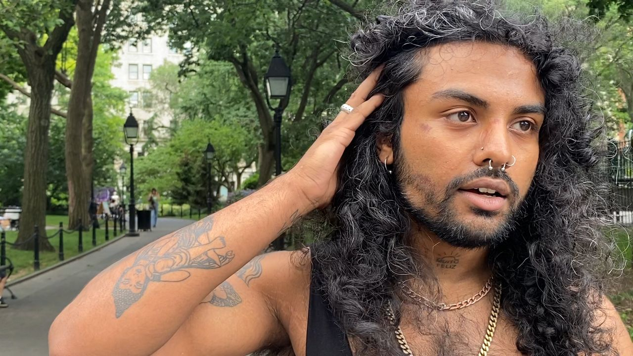 A man holding back his hair to expose the side of his face with bruising.